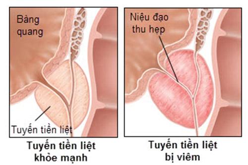 phuong-phap-ho-tro-dieu-tri-benh-viem-tuyen-tien-liet-01