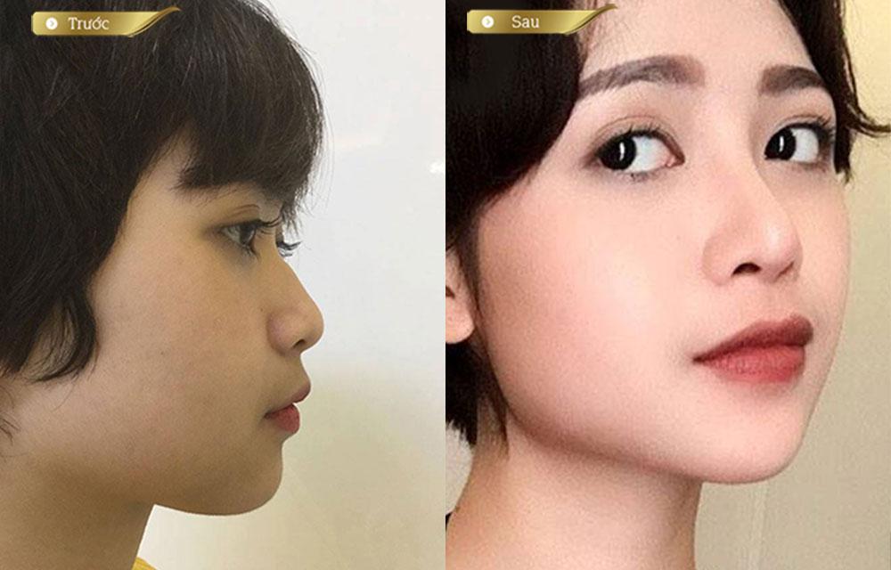17_5_nang-mui_mo-nai