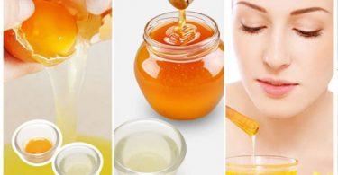 Cách trị nám tàn nhang bằng mật ong và trứng gà hiệu quả nhanh chóng.