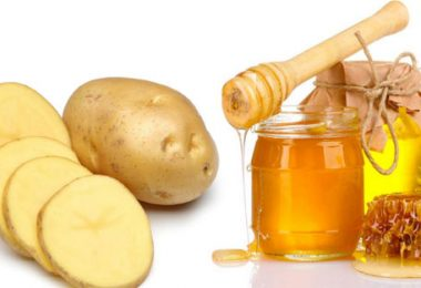 Cách trị nám tàn nhang bằng mật ong + khoai tây
