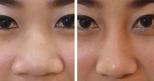 Thu gọn cánh mũi có ảnh hưởng đến tướng số không?
