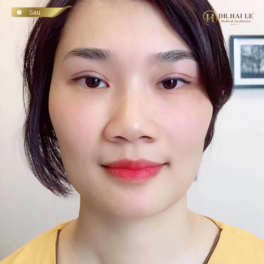 Hình ảnh cắt mí loại bỏ mắt nhiều mí tại Dr.Hải Lê