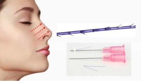 Lợi và hại của nâng mũi bằng chỉ