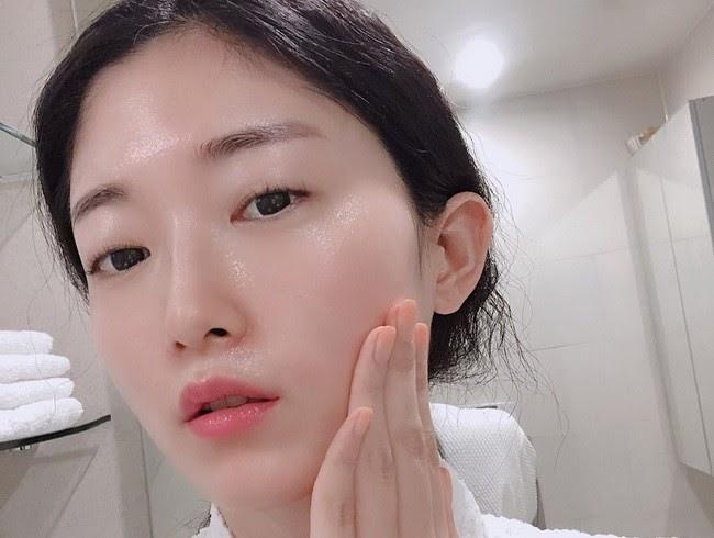 Da mặt căng mịn sau khi trị sẹo rỗ bằng phương pháp laser