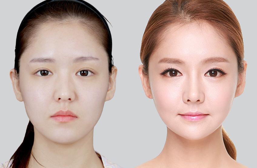 Tiêm thon gọn vùng hàm hay được biết là tiêm botox sẽ mang đến cho bạn một chiếc cằm chuẩn V-line thanh mảnh, duyên dáng.